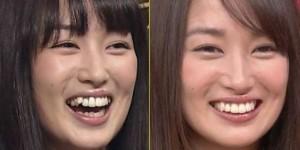 「高梨臨 前歯」の画像検索結果